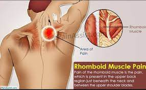 Photo of Rhomboid Muscle Pain: Causes & Solutions