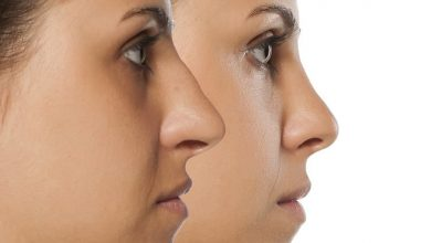 Photo of What Makes Nose Job After Surgery Are Effective?