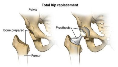 Photo of Process to Undergo for Hip Replacement Surgery